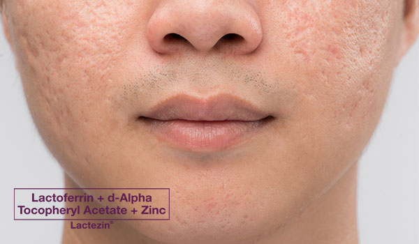 5-types-of-pimple-scars