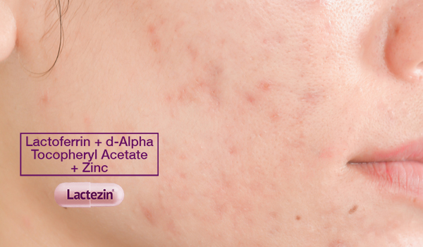 7-tried-and-tested-ways-to-lighten-acne-scars