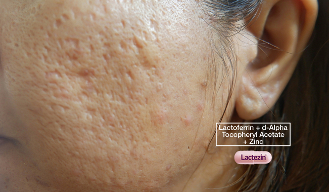 acne-scar-remedies-to-go-or-to-forego