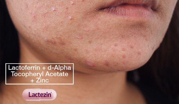 heres-everything-you-need-to-know-about-fungal-acne