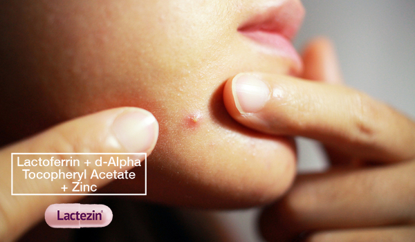 pimple-on-chin-effective-measures-that-fight-maskne