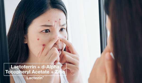 pimple-treatments-for-pimples-that-wont-go-away