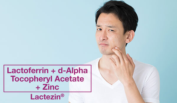 4-acne-causes-you-might-not-know-of