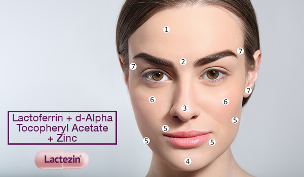 acne-face-map-understanding-pimples-and-their-locations-on-your-face