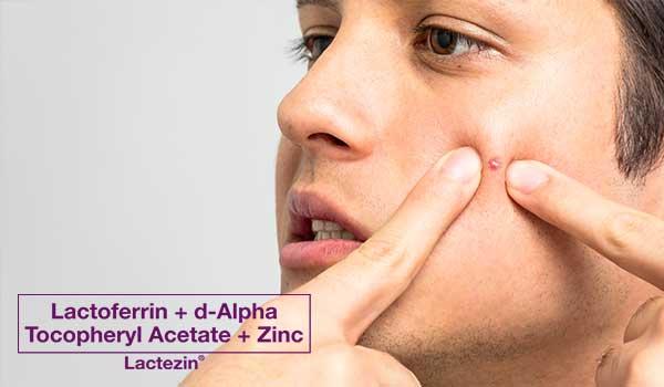 acne-in-men-101
