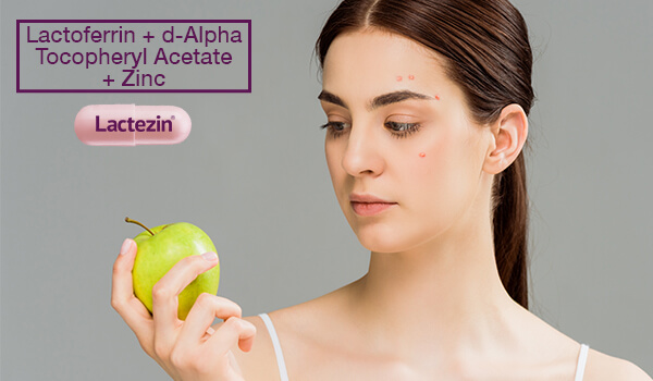 can-you-treat-pimples-with-an-anti-acne-diet-1