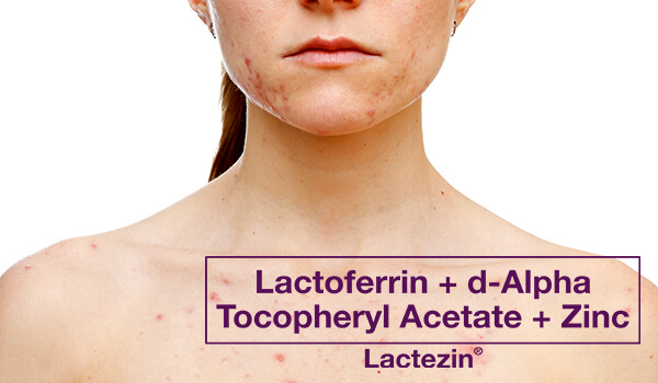 chest-acne-heres-whats-causing-it-and-how-to-get-rid-of-t