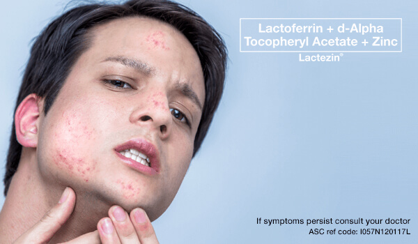 lactezin-article-pimples-on-the-forehead-chin-nose-what-causes-them
