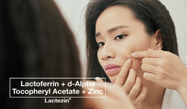 lactezin-thumb-20200311-why-acne-treatments-not-working