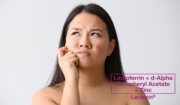 see-why-lactoferrin-is-a-skincare-favorite-for-acne-