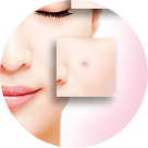 pimples-acne-category-img