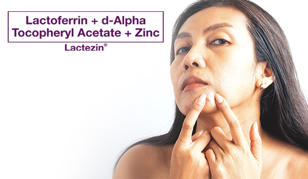 midlife acne skincare tips