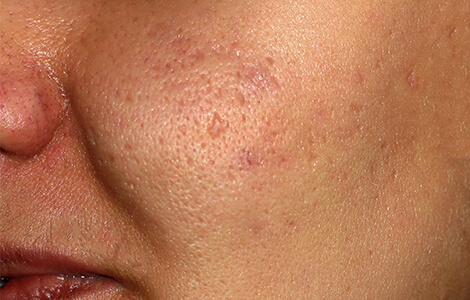 how to get rid of keloid acne scars