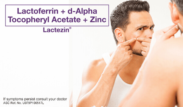 lactezin-article-stop-popping-your-zits-how-to-remove-pimples-safely