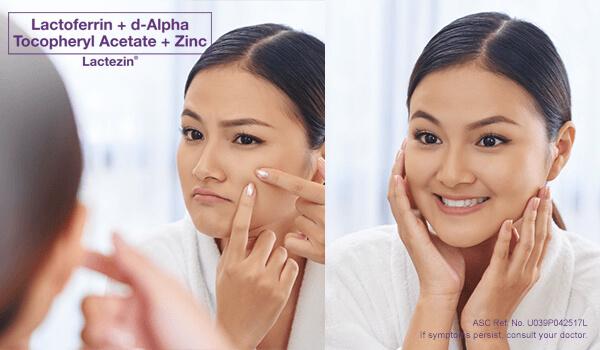 lactezin side effects and honest review against pimples