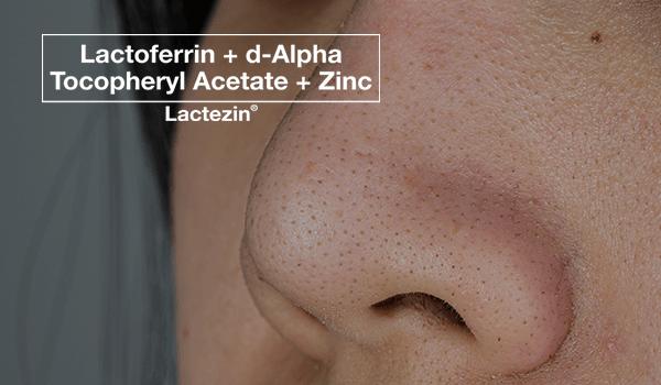 lactezin-thumb-20200311-whiteheads-on-face